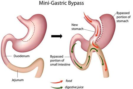 Minigastricbypass