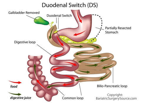 Img med duodenal switch resized