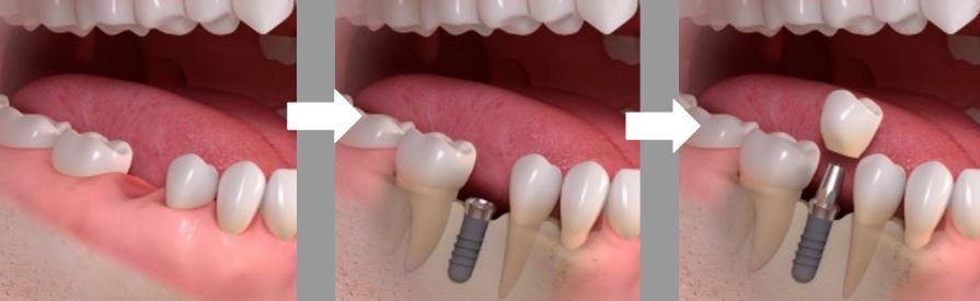 Dental implants and teeth restoration