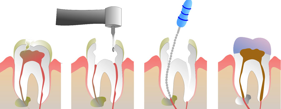 Surrey dentist root canal