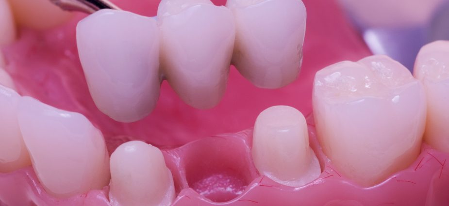 Dental bridges min 925x425