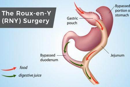 Gastric Bypass (roux-en-y-gastric bypass)