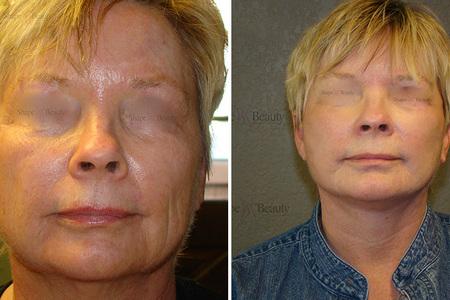 Facelift - Rhytidectomy
