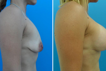 Breast Augmentation and Breast Lift