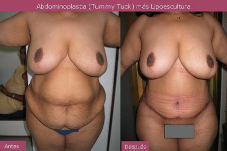 Classical Abdominoplasty