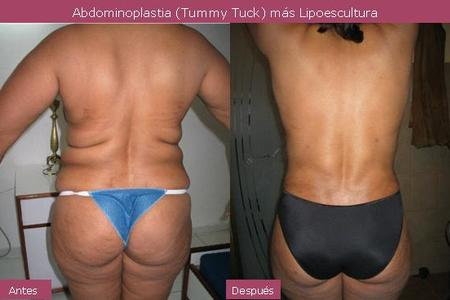 Liposculpture One Area