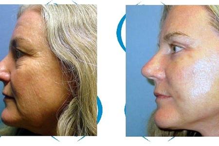 Eyelid   facelift   neck lift