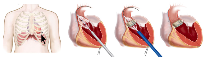 Transapical approach