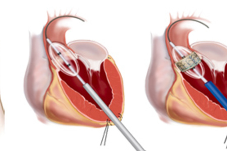 Percutaneous implant of cardiac valves