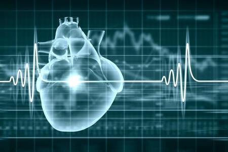 Awareness for sudden cardiac arrest