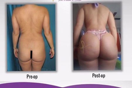BUTTOCK AUGMENTATION (BBL)
