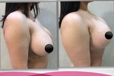 Breast lift01