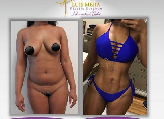 Liposuction bbl bl