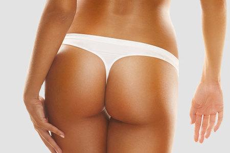 Buttock augmentation