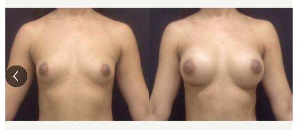 Breast augmentation02