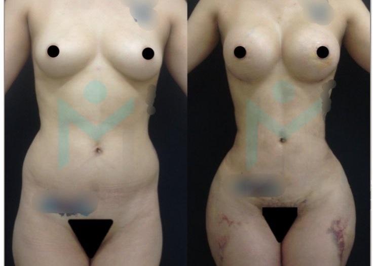 Bbl lipo breast augmentation