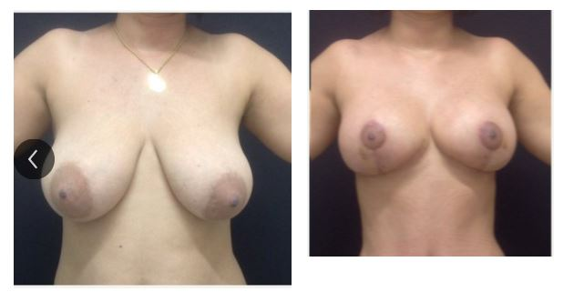 Breast reduction 02