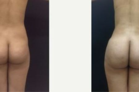 Butt Augmentation / Brazilian Butt Lift