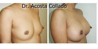 Breast augmentation 03