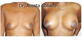 Breast augmentation 04