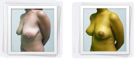Breast lift3