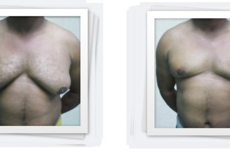 Gynecomastia surgery (breast tissue in men)