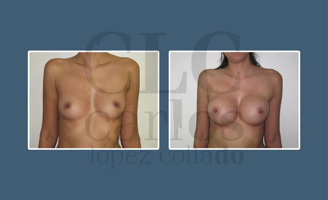 Breast aug03