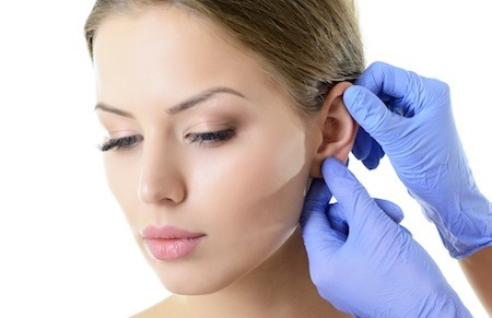 Otoplasty ear surgery