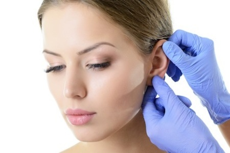 Otoplasty / Ear Surgery