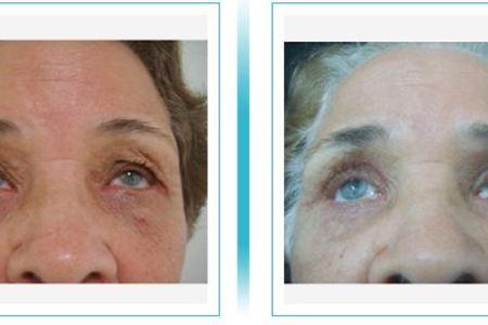 Blepharoplasty (Eyelids)
