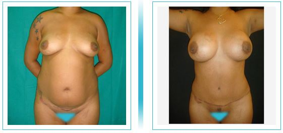 Tummy lipo breast2