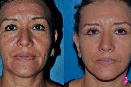 Rejuvenation (Rhytidectomy – Facial Lifting)