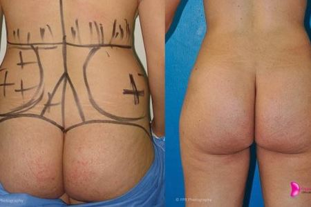 Liposuction and plastic surgery