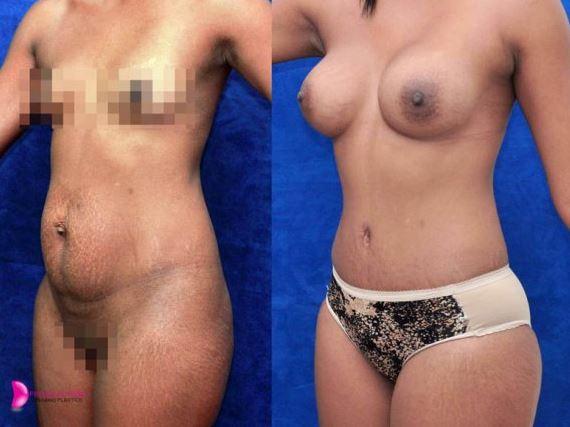 Liposculpture breastlift