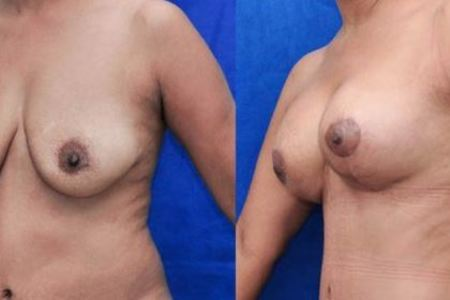 Mastopexy (Breast Lift +  Augmentation)