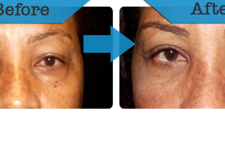 Blepharoplasty / Eyelid Surgery