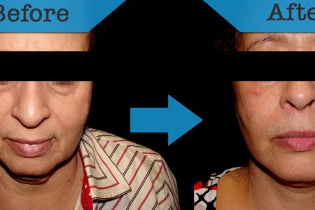 Facelift (Rhytidoplasty)