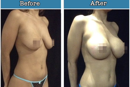 Mammary implants (Breast Augmentation)