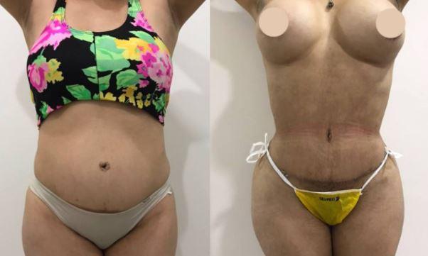 Tummyt lipo breast