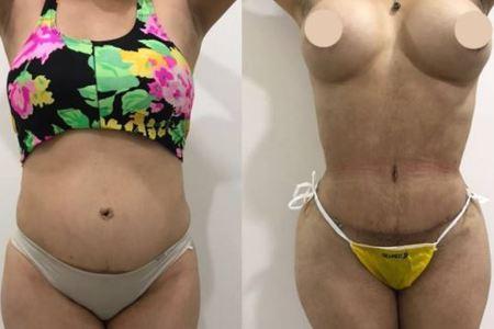 Abdominoplasty / Tummy Tuck