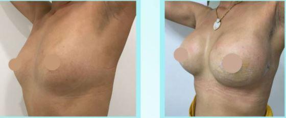 Breastaugmentation