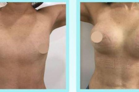 Breastaugmentation3