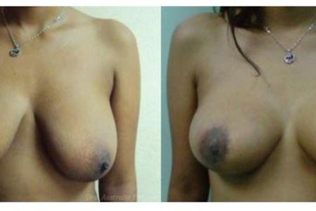 Mastopexy (Breast Lift)
