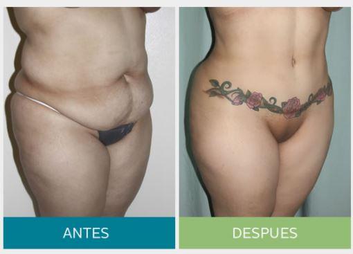 Tummy4
