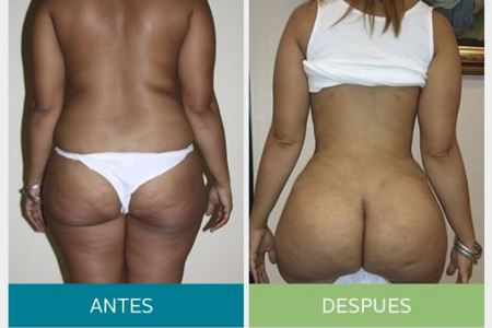 Liposuction (Liposculpture)