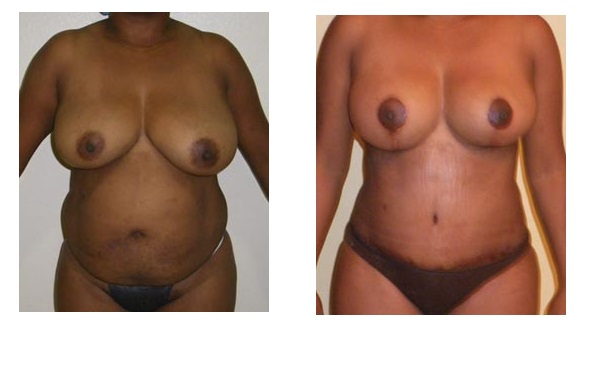 Breast lift and redu