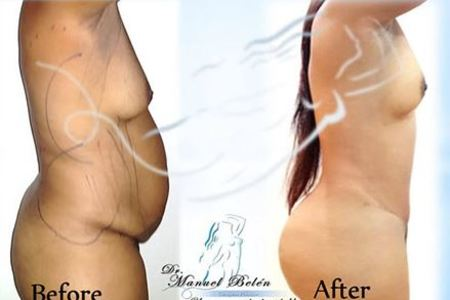 ABDOMINOPLASTY OR TUMMY TUCK