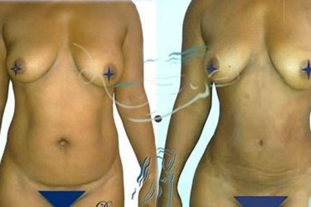 LIPOSCULPTURE OR LIPOSUCTION