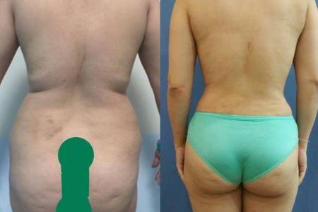 Liposculpture & liposuction