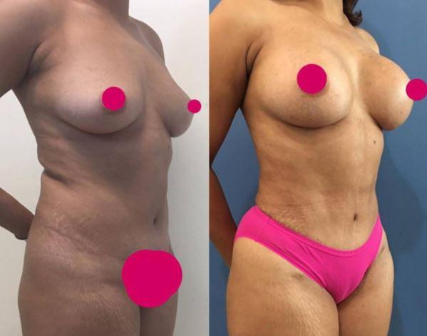 Breastaug liposculture